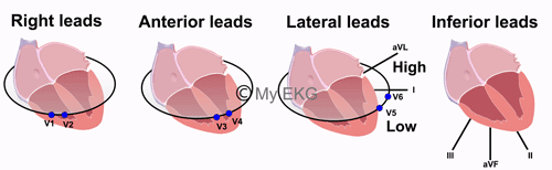 Anterior, Inferior, Lateral and Right Leads