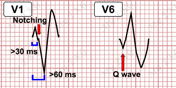 Ventricular Tachycardia Criteria with LBBB-pattern