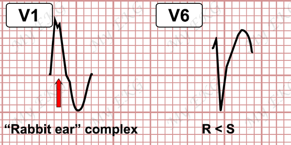 Ventricular Tachycardia Criteria with RBBB-pattern