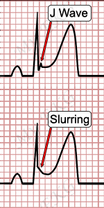 J Wave and Slurring, Electrocardiogram of Early Repolarization Pattern