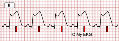 Infarct ST Segment Elevation